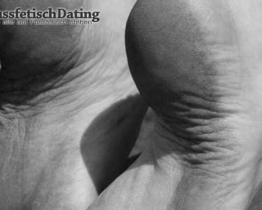 Füße mit Schrunden und Fersenrisse.